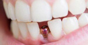 آیا ایمپلنت دندان درد دارد