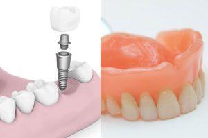 ایمپلنت دندان یا پروتز دندان