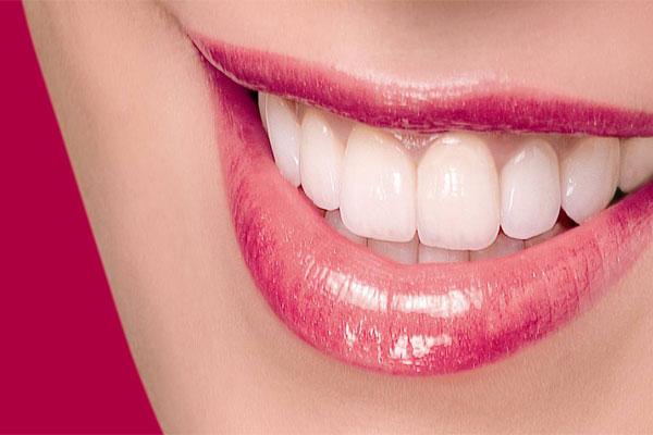 لمینت سرامیکی در مجهزترین کلینیک دندانپزشکی