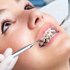 حل مشکلات دندانی با ارتودنسی