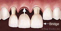 درمان با بریج پرسلین | ریکاوری بریج دندان
