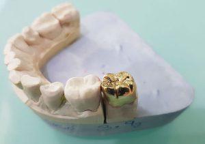 روکش طلایی دندان