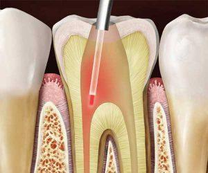 درمان ریشه دندان با لیزر