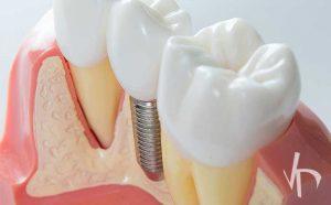 ایمپلنت دندان جایگزین دندان های از دست رفته