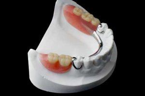 دندان های مصنوعی