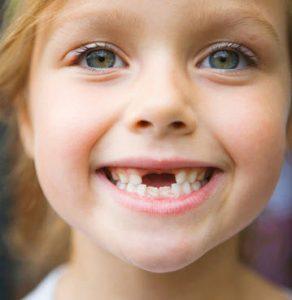 کشیدن دندان عقل کودکان