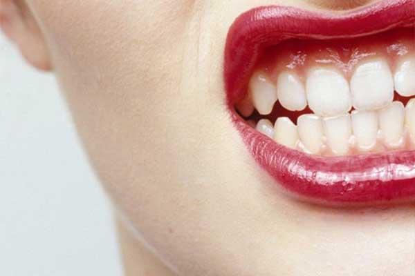 علت دندان قروچه یا بروکسیسم