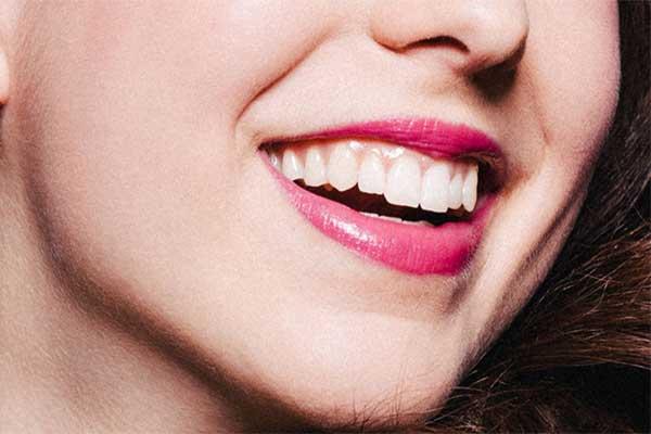بهترین سن لمینت دندان