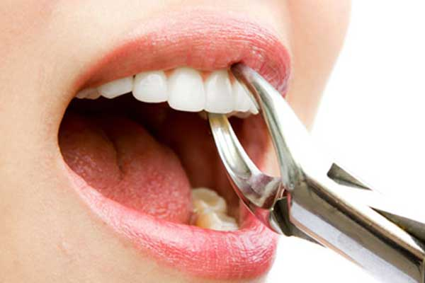 سوکت خشک بعد از کشیدن دندان