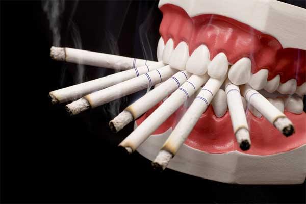 سیگار کشیدن و سلامت دندان ها