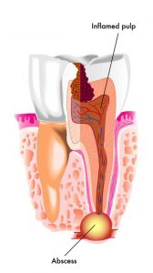 علائم آبسه دندان