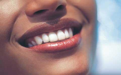 سفید کردن دندان بعد از عصب کشی دندان