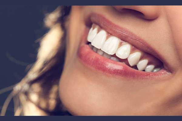 طراحی لبخند هالیوودی