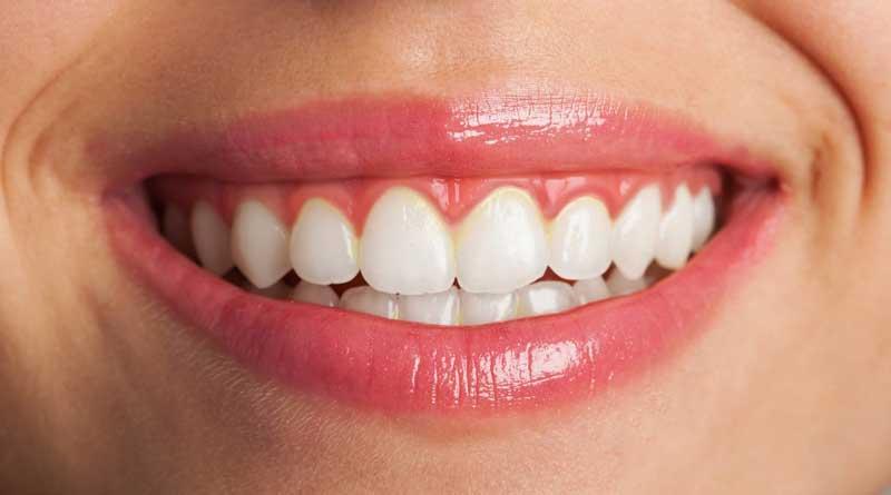 مراقبت از پروتز دندان