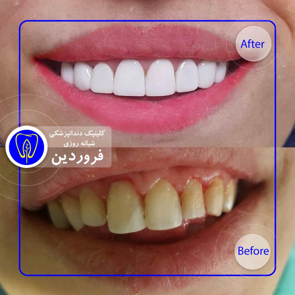 انواع لکه های دندان