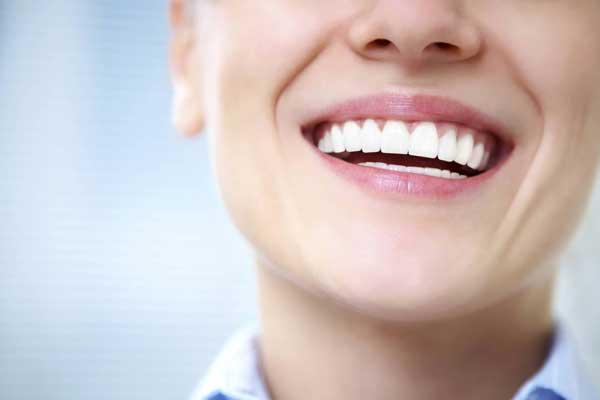 سفید کردن دندان ها