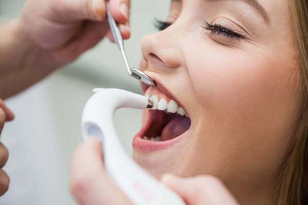 پاکسازی دندان ها