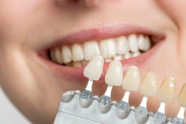 از گزینه های طراحی لبخند : دنتال باندینگ
