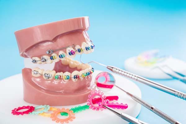 حرکت دندان ها در ارتودنسی دندان ها