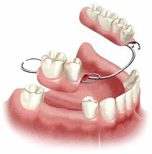 دندان مصنوعی فلیپر یا ایمپلنت دندان