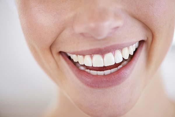پوسیدگی دندان و لمینت دندان