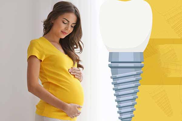 ایمپلنت دندان در بارداری