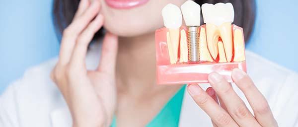 چرا ایمپلنت دندان