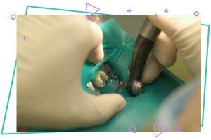 bb 300x200 - درمان ریشه