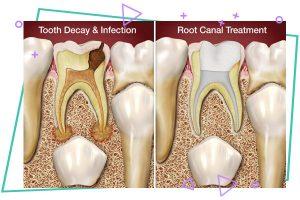 root canall 300x200 - درمان ریشه