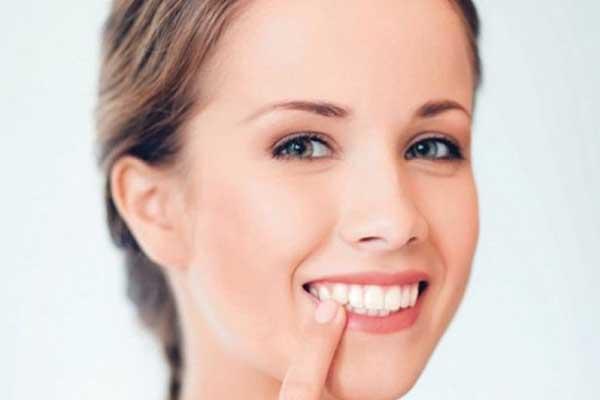 تفاوت لمینت دندان و باندینگ دندان