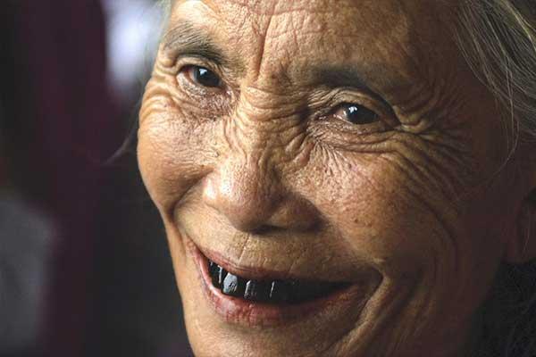 عوامل سیاه شدن دندان