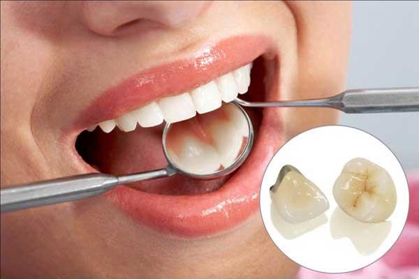 روکش فلزی دندان