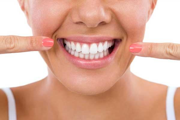 سفیدکردن دندان | فاصله بین دندان ها