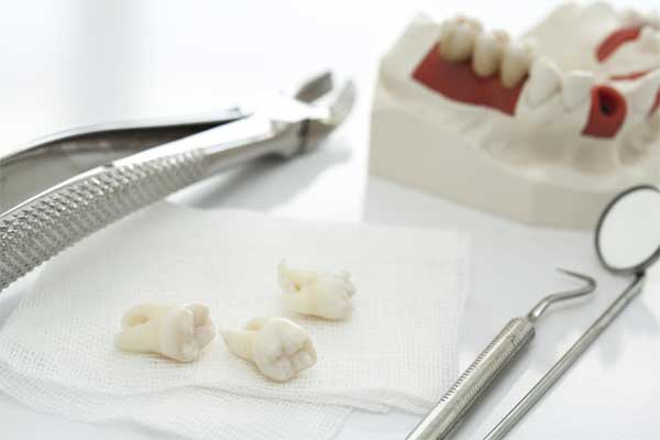 کشیدن دندان های عقل