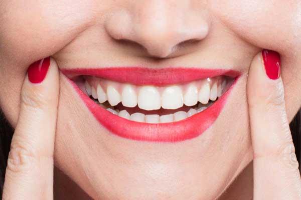 طراحی لبخند | سخت شدن مینای دندان