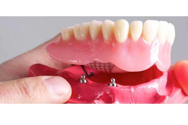 روش All-on-4 Implants