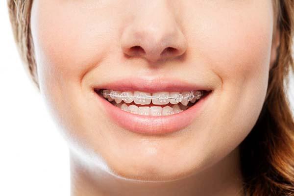 ارتودنسی دندان های بالایی یا پایینی ؟!